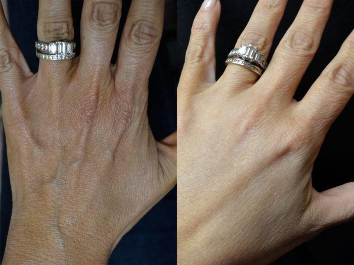 hand-rejuvenation-1b-e1477751750636