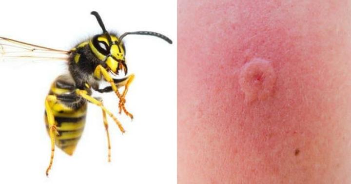 Эти насекомые могут быть опасны: каждый должен знать, как выглядят их укусы