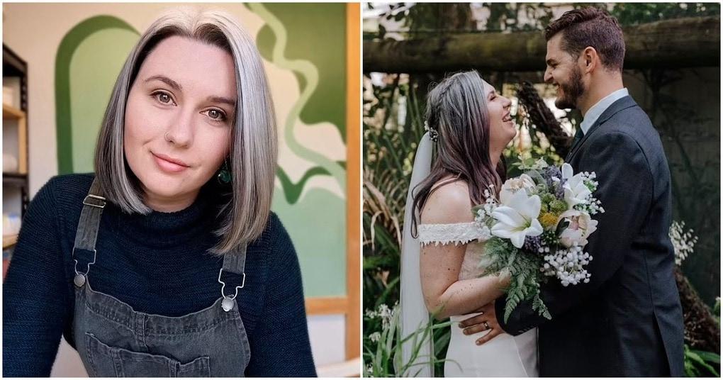 Девушка, поседевшая к 25 годам, перестала красить волосы за год до свадьбы